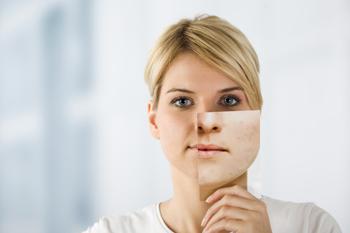 ¿Cansada de luchar contra la piel seca? Sigue estos 3 Consejos!