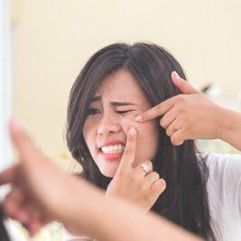 Acne Juvenil: Como Prevenirlo y como Remediarlo