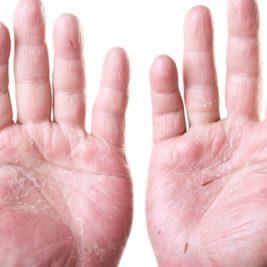 ¿Puede servir el Aceite de Argán de Marruecos para tratar el Eczema