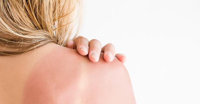 Reparar la Piel Dañada por el Sol: 5 Consejos para una Complexión Firme y Radiante