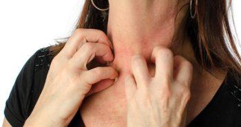 Como Tratar con el Eczema de Forma Inteligente
